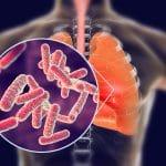 عفونی ترین بیماری قرن چیست؟