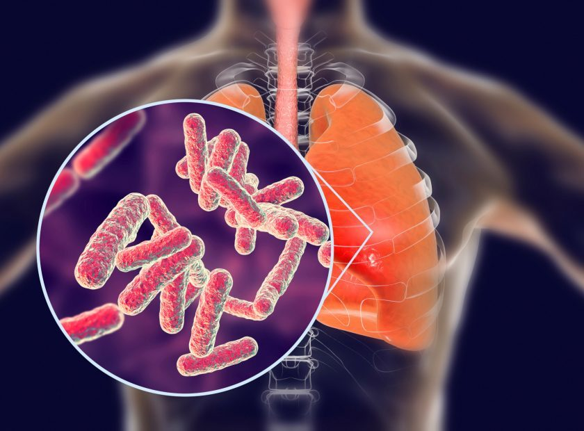 Bacteria pneumonia, medical concept
